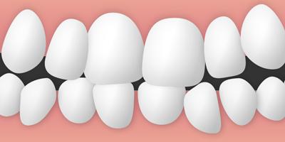 歯がガタガタ(叢生)