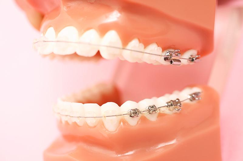 出っ歯の症例