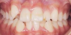 歯並びがデコボコ1
